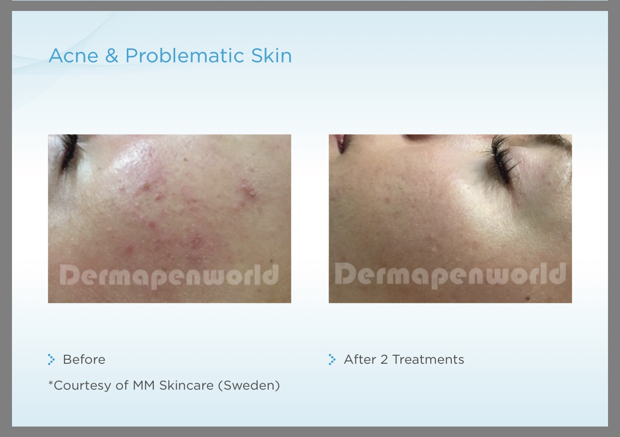 Dermapen Treatment before and after 1